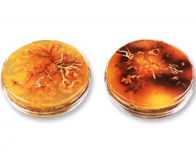 Zorn in der Petrischale: Pilzkultur von Armillaria cepistipes. Dunkle Areale enthalten besonders viel Melanin. Bild: Empa